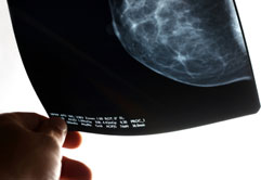 Photo of a mammogram x-ray film