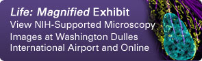 Life: Magnified Exhibit: View NIH-Supported Microscopy Images at Washington Dulles International Airport and Online