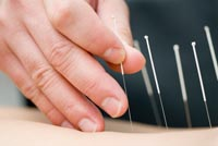 Acupuncture. Credit: Stock image.