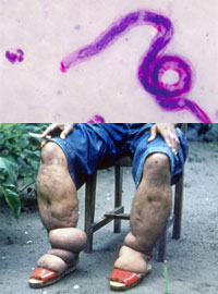 (Top)Parasitic worms that cause elephantiasis. (Bottom) Patient with elephantiasis. Credit: CDC.