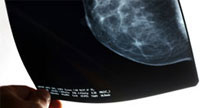 Photo of a mammogram x-ray film. Credit: Stock image.