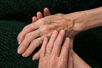 Photo of a hands affected by arthritis. Credit: Stock image.