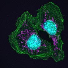 Skin cancer cells from a mouse show how cells attach at contact points